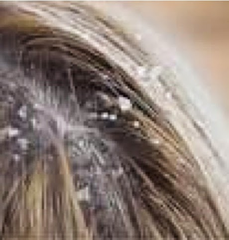 El aceite para los cabellos la abuela agafya con el pimiento