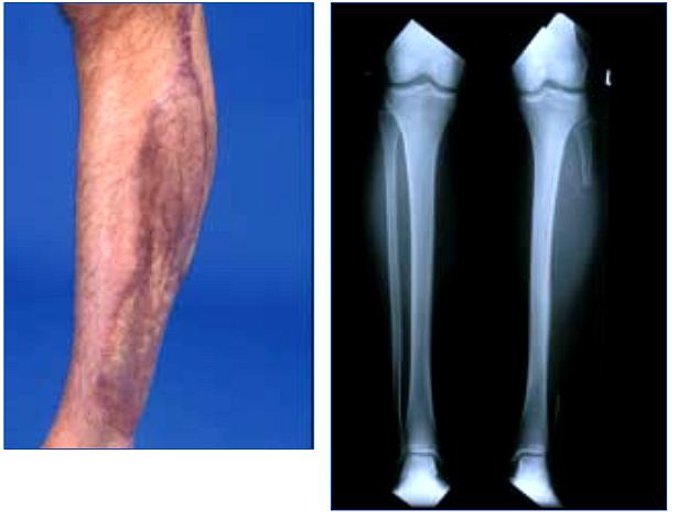 FTM Bottom Surgery: Fibula Free Flap Phalloplasty - The ...