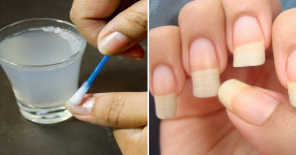 Как сделать чтобы ногти были твердые 143