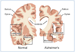 Nursing Management for Alzheimer's Disease