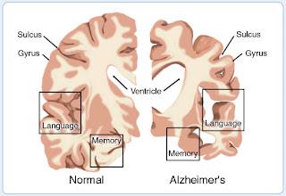 12 Nursing Diagnosis for Alzheimer's Disease (NANDA)