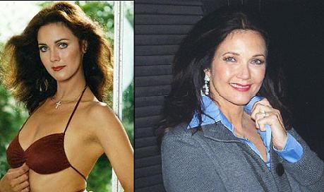 Chatter Busy: Lynda Carter Plastic Surgery