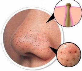 Cara Ampuh Menghilangkan Komedo Di Hidung Dengan Cepat Dan Alami