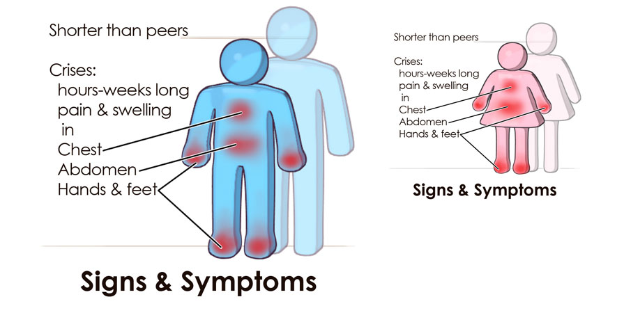 the signs symptoms and treatment of sickle cell disease Dr richard ward and dr john foote discuss the emergency management of sickle cell disease  vital signs any abnormal vital  treatment of pain in sickle cell.