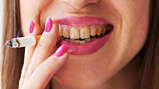 Tabagismo deixa dentes amarelados