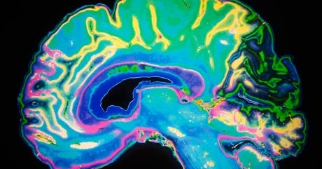 Nesca Presents Valued Approaches To >> Nesca News Notes The Neuroscience Behind Stress And Learning