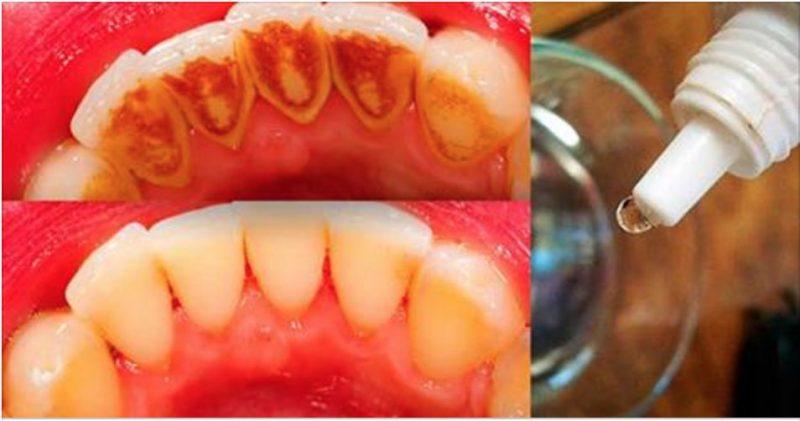 Segredo Revelado Elimine Todo O Tartaro E Deixe Os Dentes Brancos