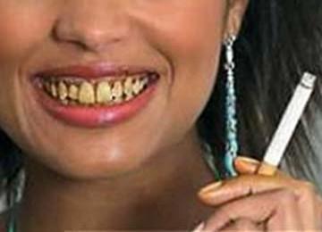 Info Kesehatan 10 Penyebab Gigi Menjadi Kuning
