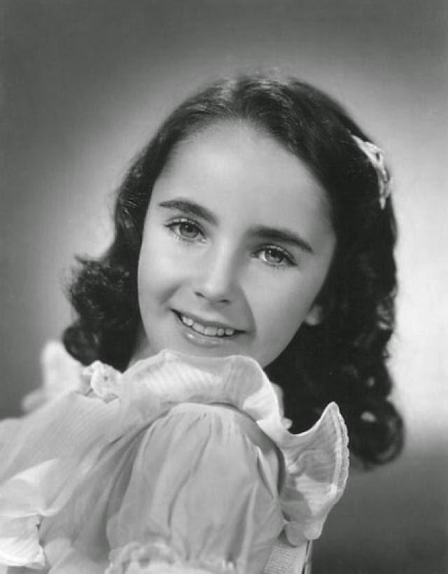 Elizabeth Taylor Distichiasis