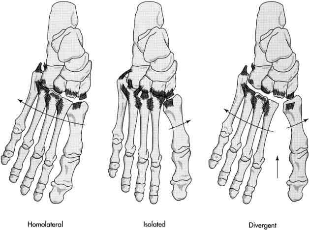Lisfranc injury ends NFL season potentially-3.bp.blogspot.com