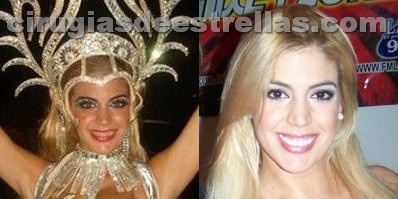 virginia gallardo antes y despues