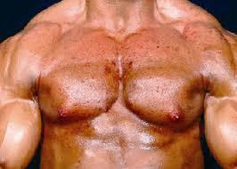 anabole steroide hoden