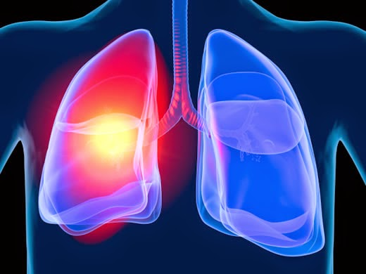 early detection of lung cancer