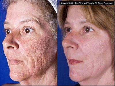 Acne scar co2 laser treatment by yvette chau the acne scar co2 laser