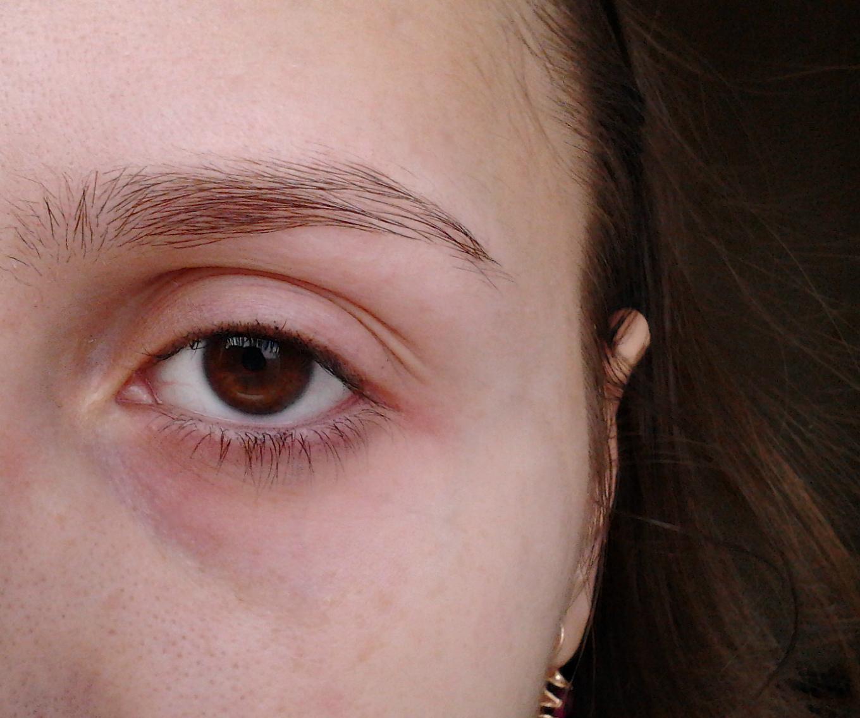 Что делать если шелушится нос и брови 5
