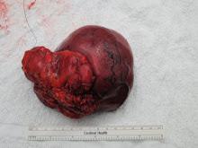 My Tumor