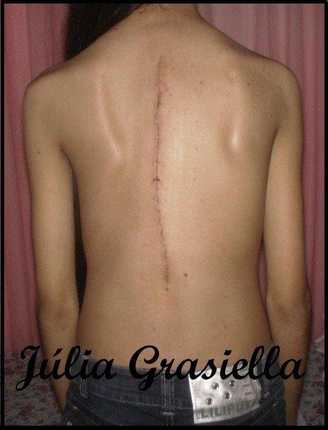 A menina da coluna torta the girl with a crooked spine cicatriz do bem