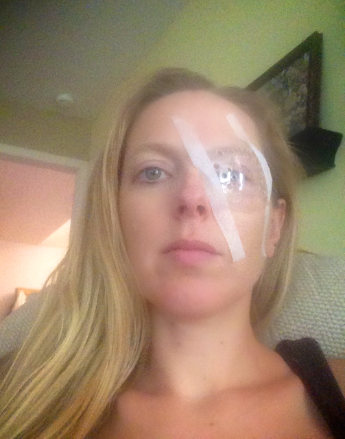 How to apply eye patch after cataract surgery