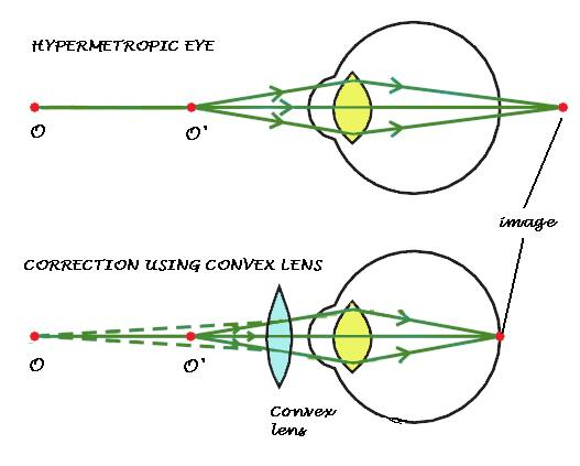 Myopia Eye Ray Diagram Electrical Work Wiring Diagram