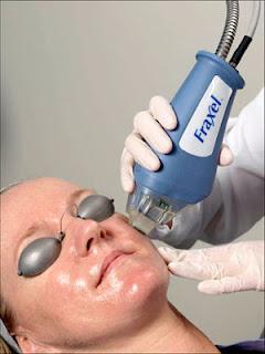 tratamiento con laser fraccionado para cicatrices