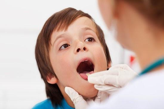 Natural Ways To Avoid Tonsillitis
