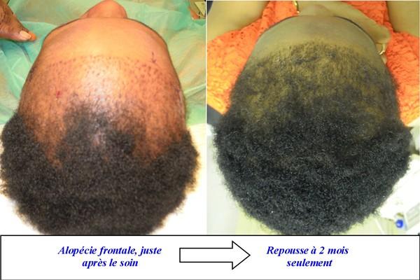 le blog de hair for life discussions sur la greffe de poils de cheveux de cils ou de. Black Bedroom Furniture Sets. Home Design Ideas