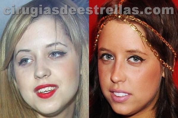Antes y después de los dientes de Peach Geldof
