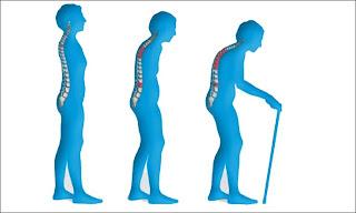 postur tulang belakang