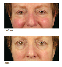 Clarisonic Before & After Results: Rosacea