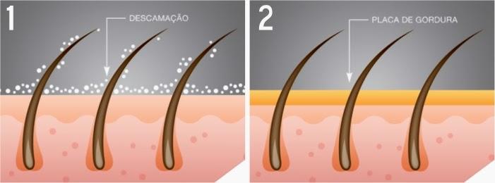 Esquema demonstrando descamação e formação de placa de gordura no couro cabeludo como causas de caspa