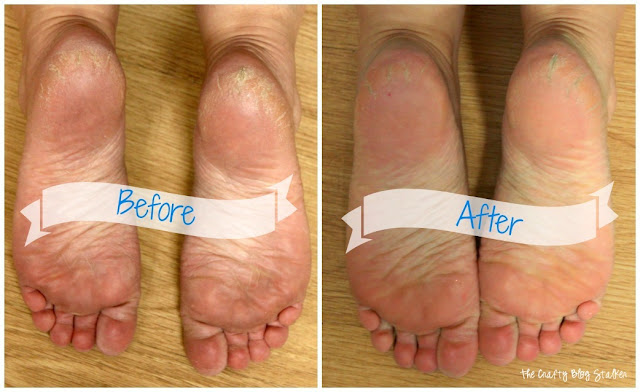 Remove Dead Skin Foot Soak