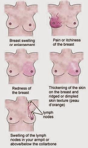 Las causas del cáncer de pecho, síntomas, tratamiento - cáncer de pecho Síntomas y signos