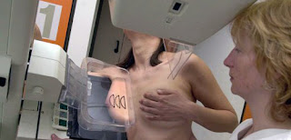 mammography ; breast cancer awareness