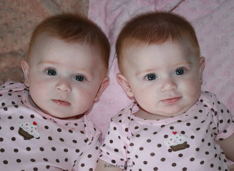 Twins People Photographs No. 2