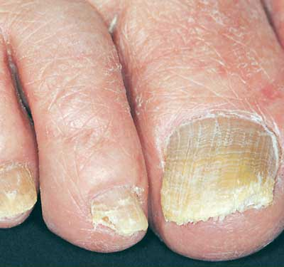 Healthy Fingernails: Clues About Your Health Video - WebMD
