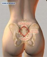 Las causas del dolor constante en los cuellos