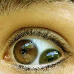 O caso do olho com duas pupilas
