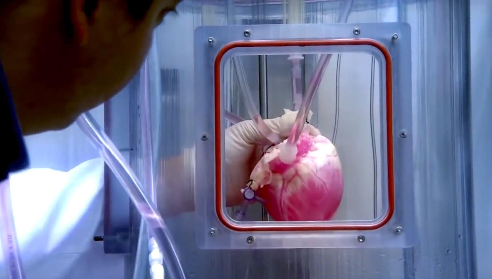Τσιρότο καρδιάς, θα αντικαθιστά τα επικίνδυνα χειρουργεία