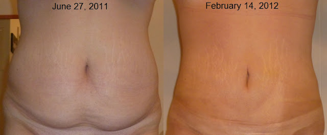 Skin Retraction With Smart Lipo Laser Lipo