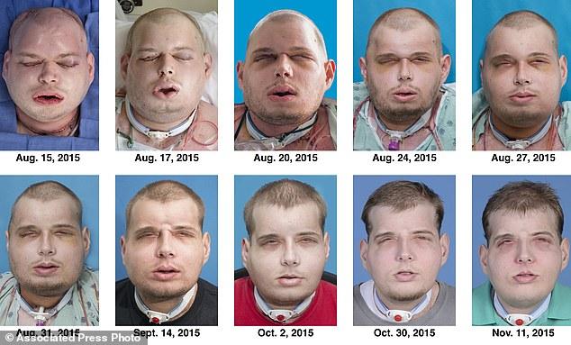 Pat Hardison face transplant