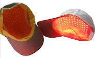 Solução para calvície - Fototerapia ou Laser Capilar