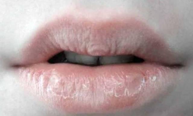 Gejala, Penyebab Mulut Kering dan Pahit | Dokter Gigi