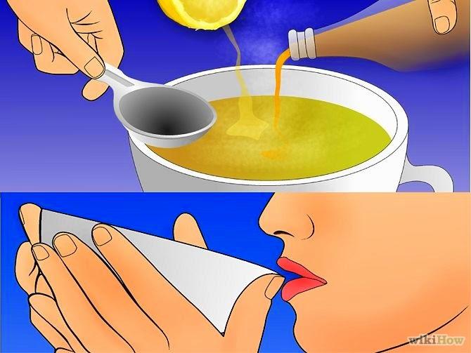 علاج التهاب اللوزتين