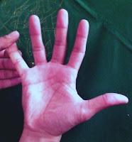 Dedo meñique