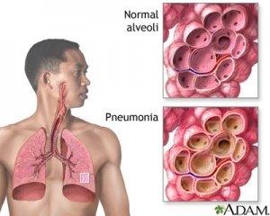 Penyakit Bronkitis Definisi Penyebab dan gejala