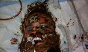 Kelly Thomas lying in a hospital bed badly injured