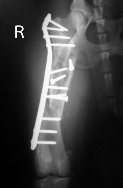 placa de neutralización en fractura conminuta de fémur