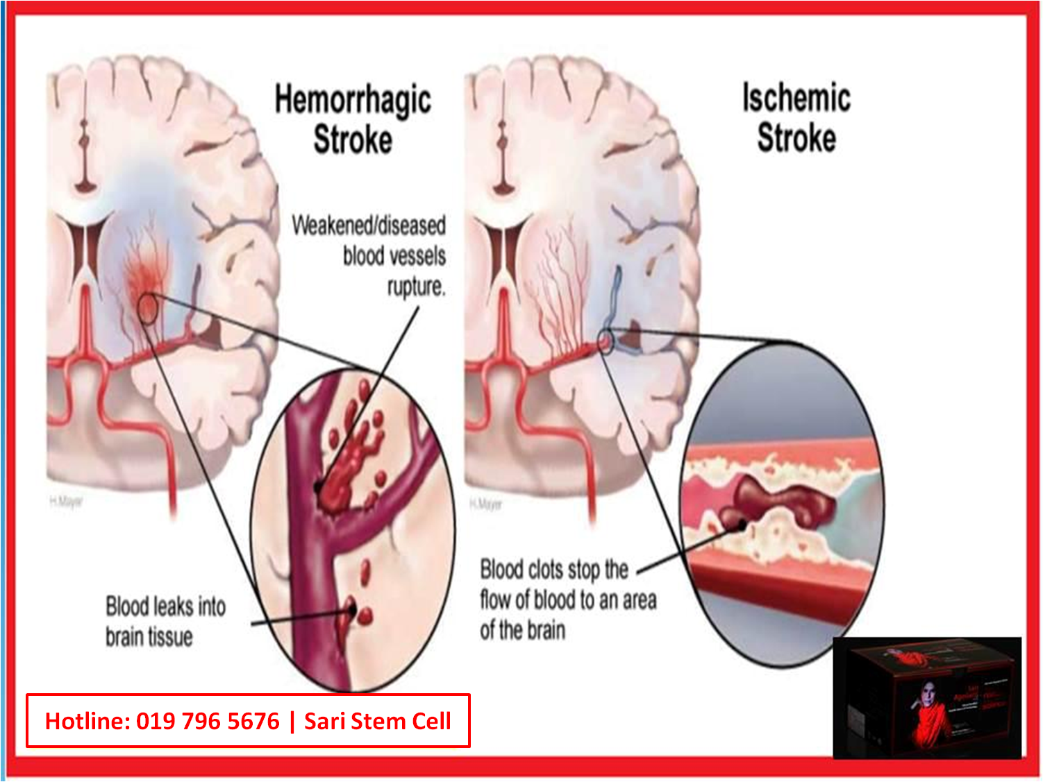 post stroke dating The process of recovery after hemiplegia  year after the stroke the relative weighting of th e variou s section could certainly hav been done differently.