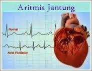 Cara Menyembuhkan Aritmia Jantung
