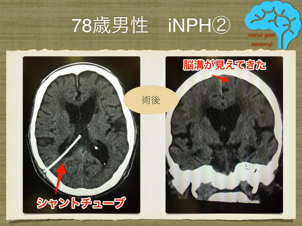 78歳男性 特発性正常圧水頭症の画像②